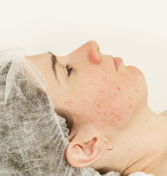 How to get ride of acne scars.