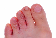 Athlete's Foot treatment can be found here at Online Pharmacies Canada.