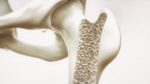 Osteoporosis - Online Pharmacies Canada