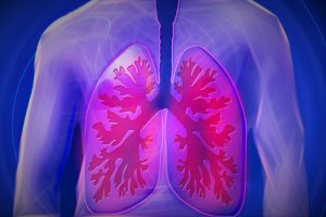 upper body lung - copd